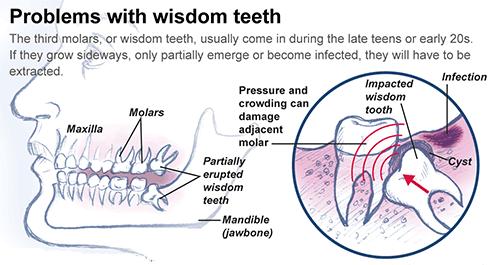 Wisdom Teeth Raniga Dental